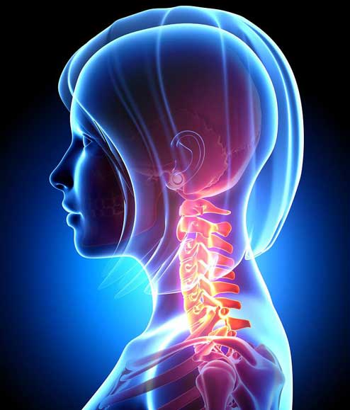 Cervical vertebrae inflamation