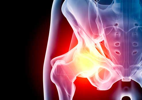Hip Xray view of inflamation